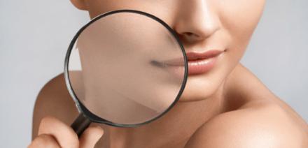 Diagnostico de piel